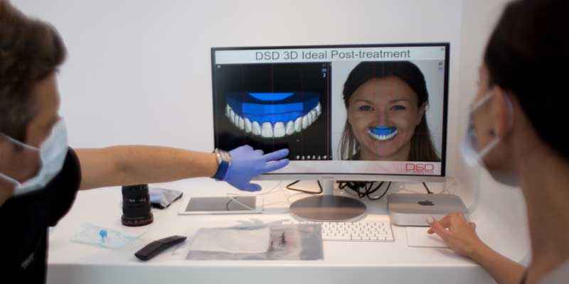 Esthetic dentistery service – in our dental clinic in Geneva smile Design Boutique.