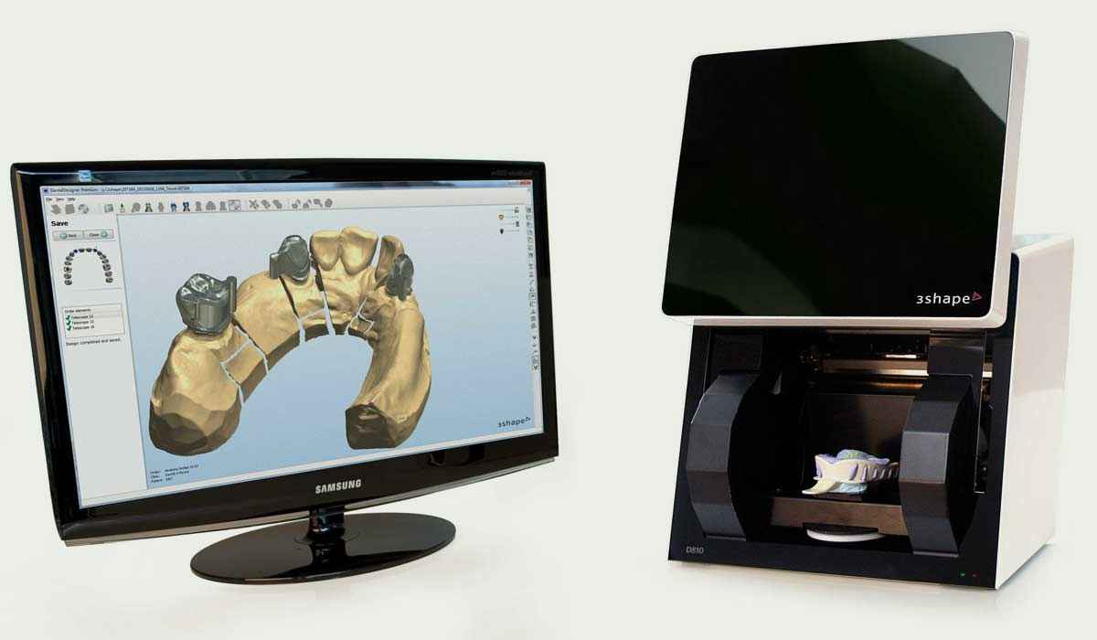 CAD CAM Technology – With the use of  3D CAD-CAM technology, computer-designed and custom-made inlays, caps, veneers  and crowns grant