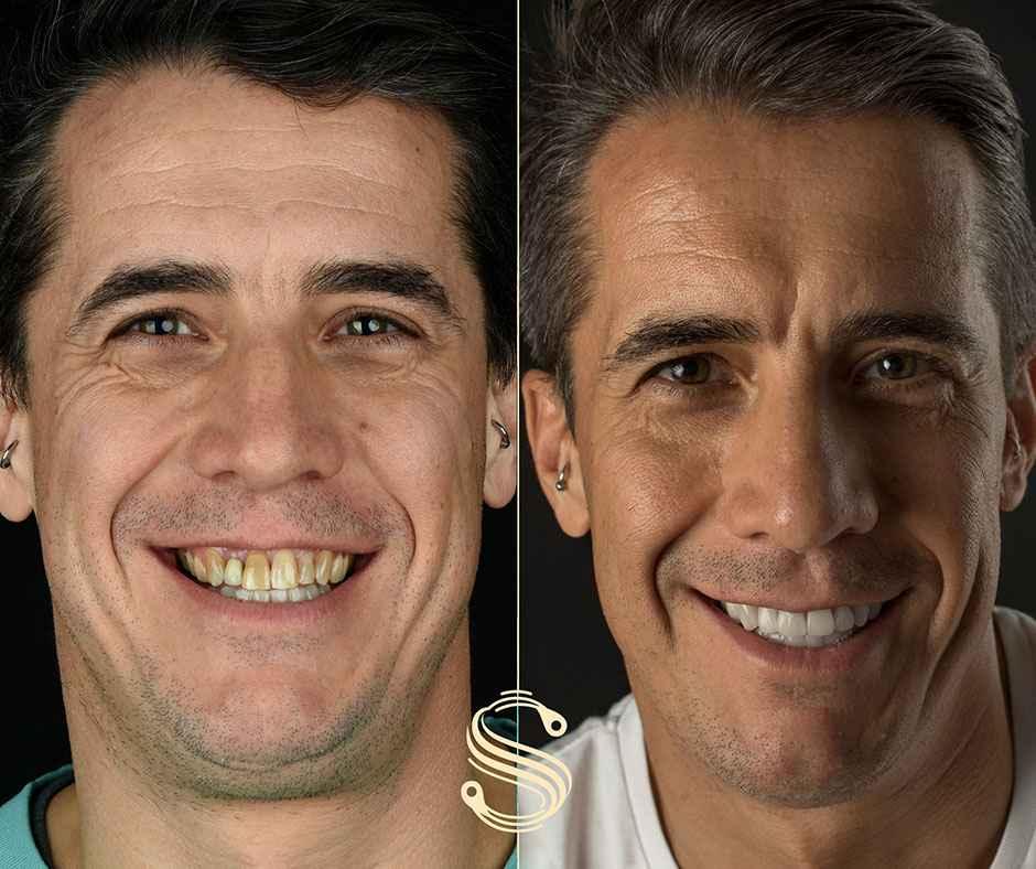 Le nouveau sourire d'Antoine réalisé dans la clinique dentaire Smile Design Boutique à Genève