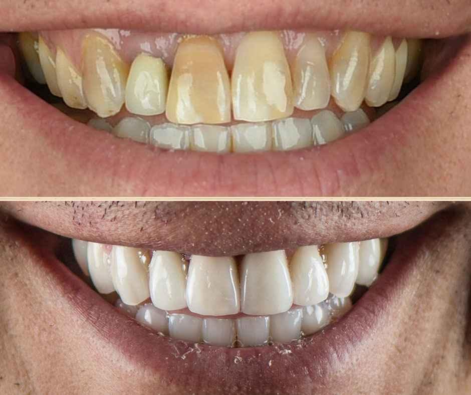 Zoom sur le nouveau sourire d'Antoine grâce à Digital Smile Design