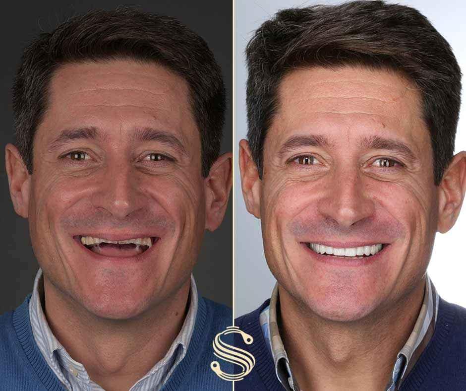 Le nouveau sourire de Carlos grâce à Digital Smile Design