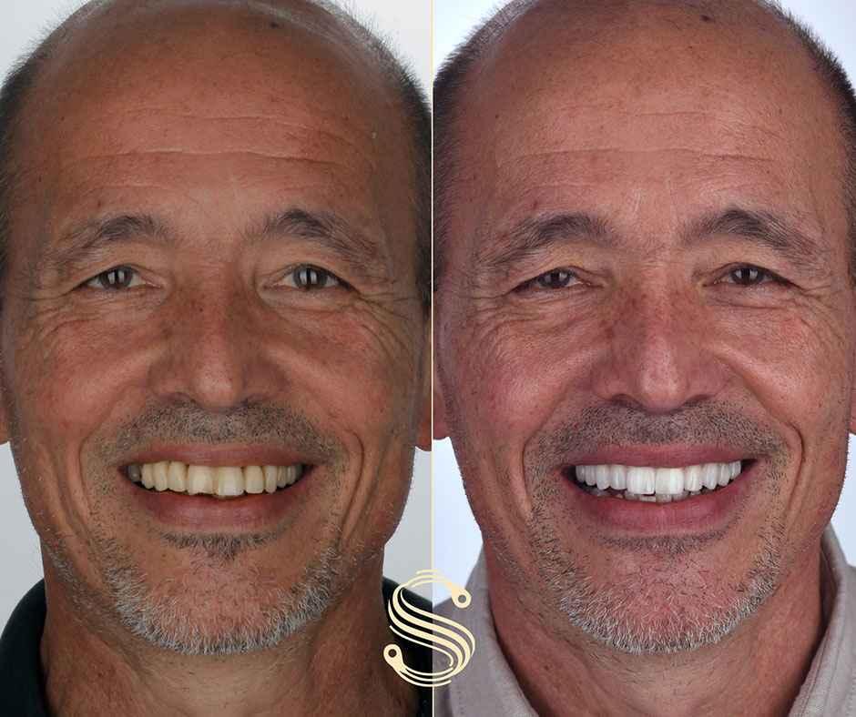 Le nouveau sourire de Jose grâce à Digital Smile Design