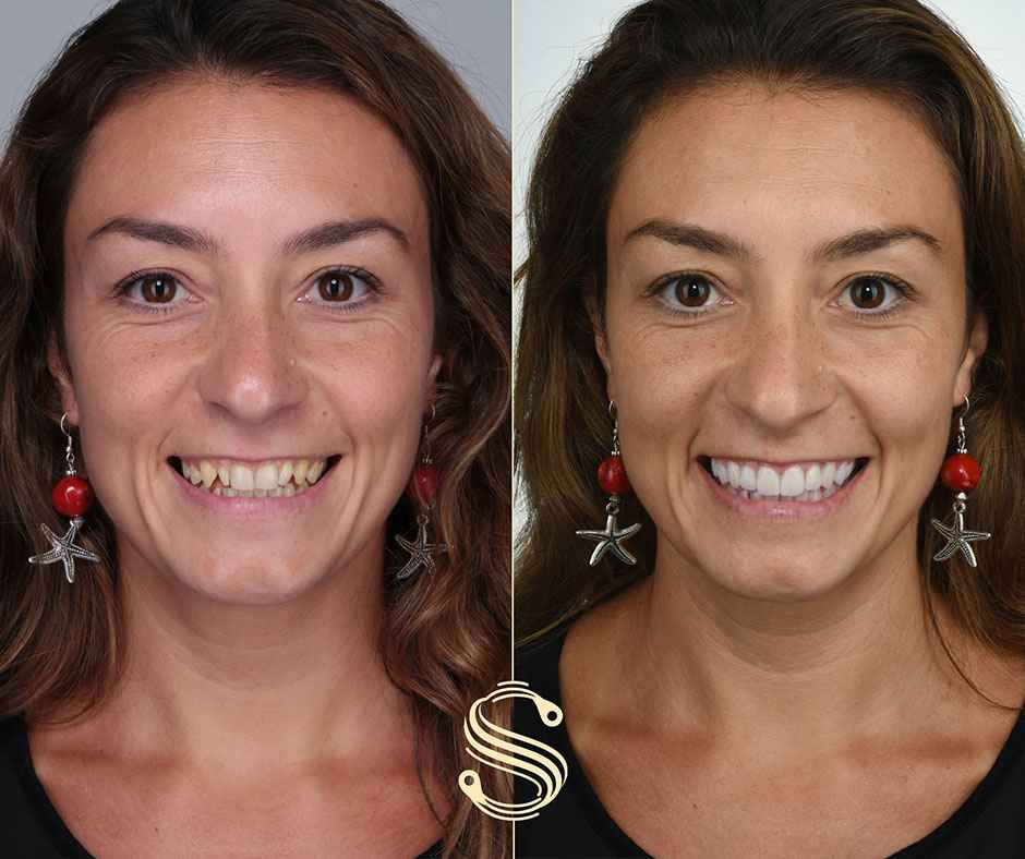 Valentina's new smile thanks to Digital Smile Design