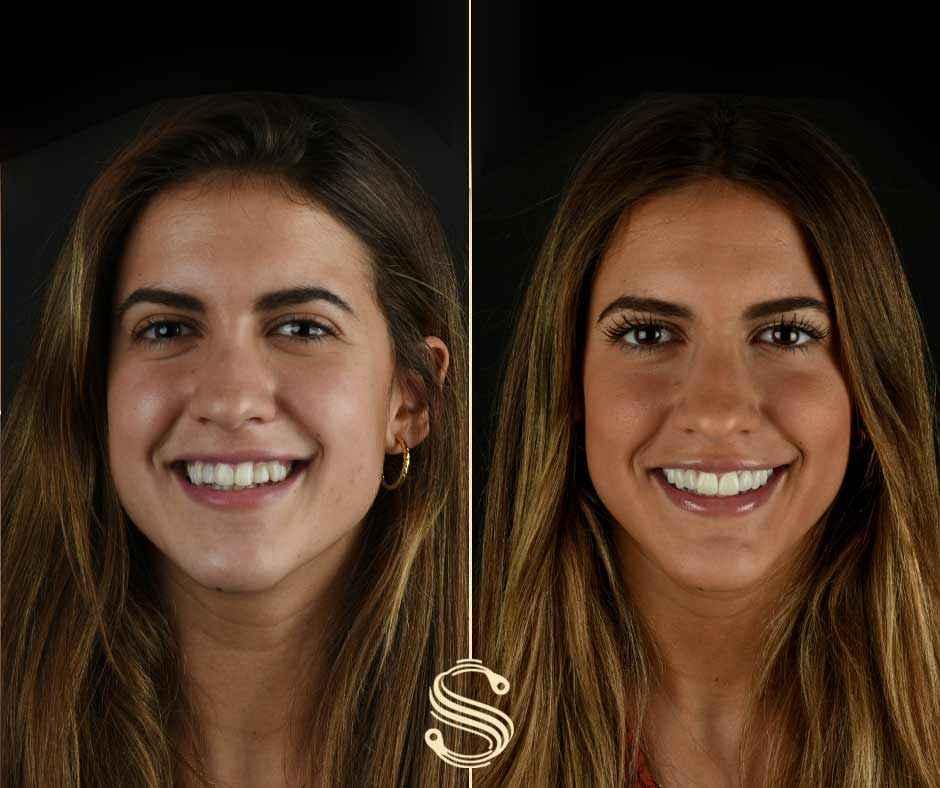 Lidia's new smile thanks to Digital Smile Design