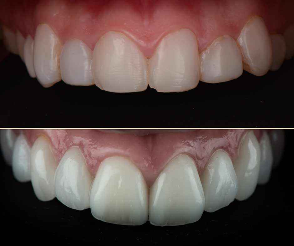 Zoom on Claudia's new smile thanks to Digital Smile Design