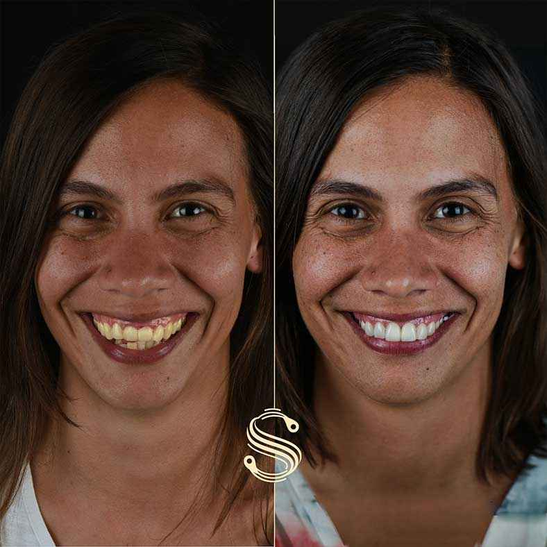 Photo avant et après du sourire d'Agnès