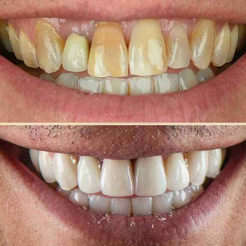 Zoom on the Before and After Antoine's New Smile