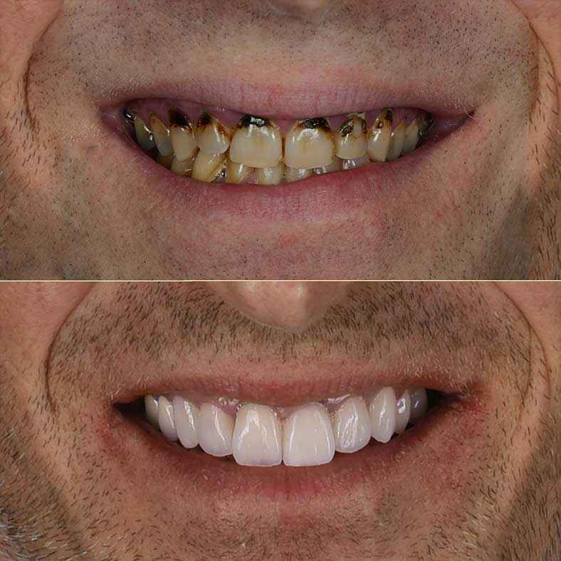 Zoom on Before and After Adrian's new smile