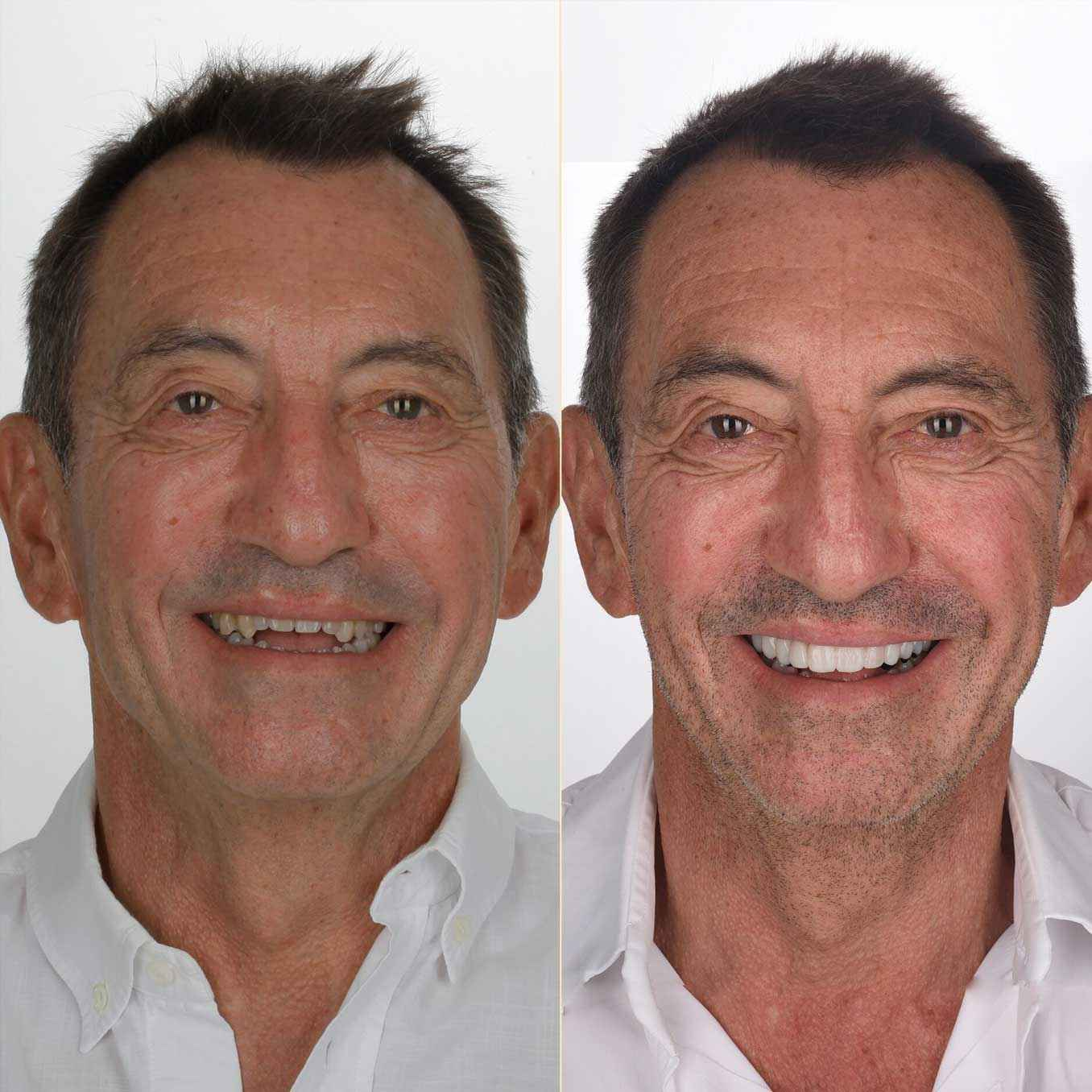 Before and After : Discover Dominique's new smile