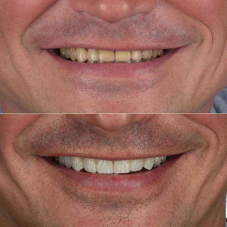 Zoom on Before and after  Giorgi's New Smile