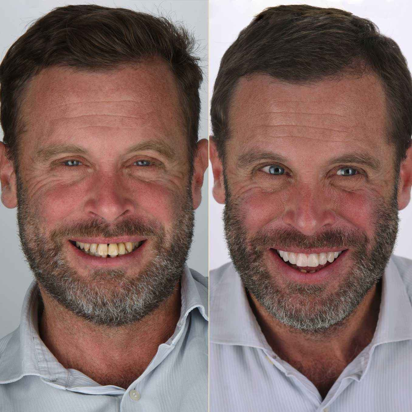 The Before and After Francois's New Smile