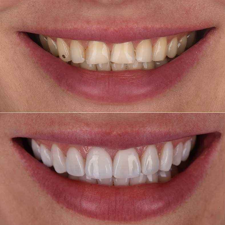 Zoom on the Before and After Yulia's New Smile
